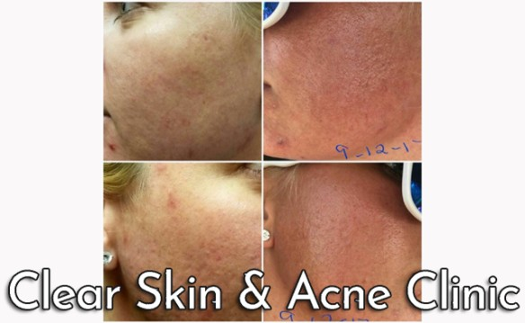 Clear Skin and Acne Clinic - Acne Skin Package