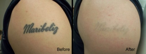 Over half off laser tattoo removal at rethink the ink for Laser tattoo removal madison wi